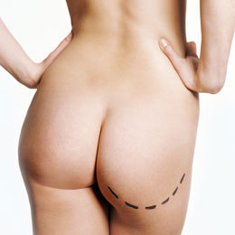Liposuction, lipolysis and cellulite